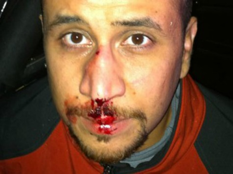 zimmerman nose broken
